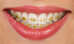Types Of Braces Casaus Orthodontics Albuquerque Nm